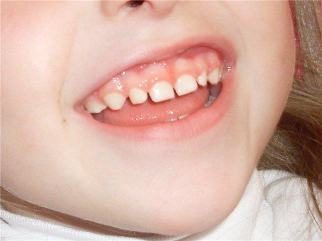 Большая уздечка верхней губы у ребенка фото
